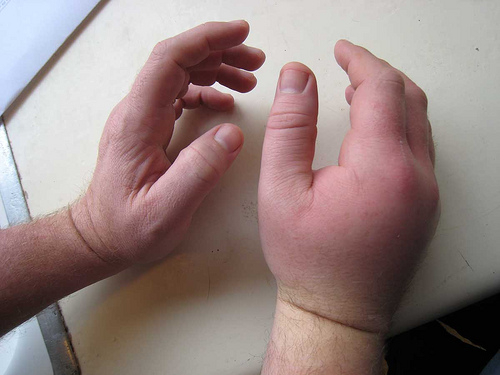 Bee sting allergic reaction - photo#1