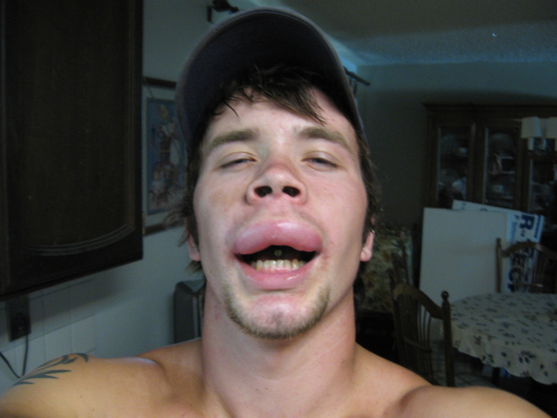 Bee sting allergic reaction - photo#5